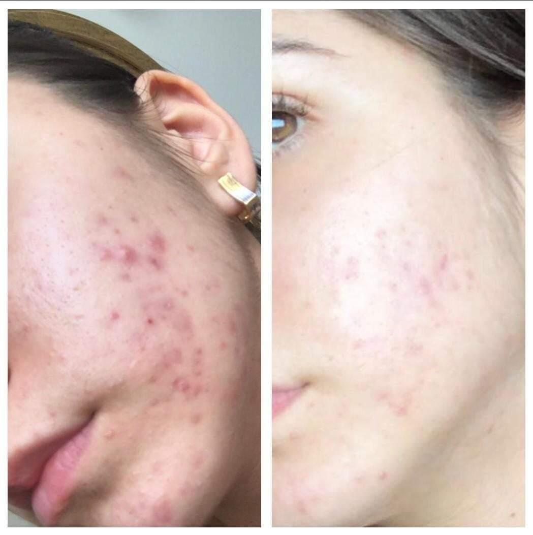Unul dintre cele mai eficiente tratamente impotriva acneei - consilier-dezvoltare-personala.ro